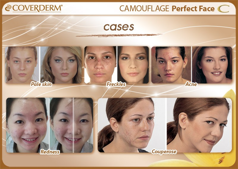CVD052_Perfect face_cases copy